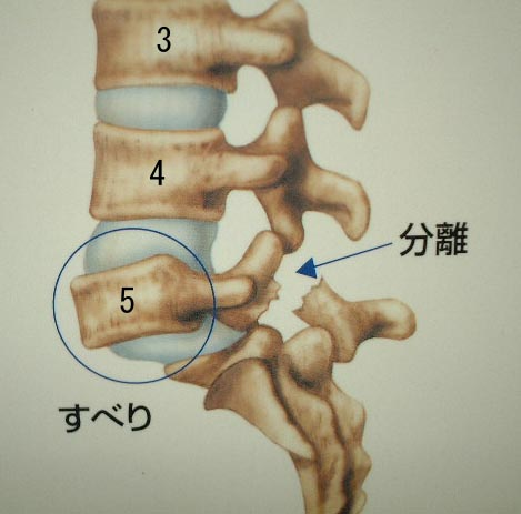 腰椎分離・すべり症