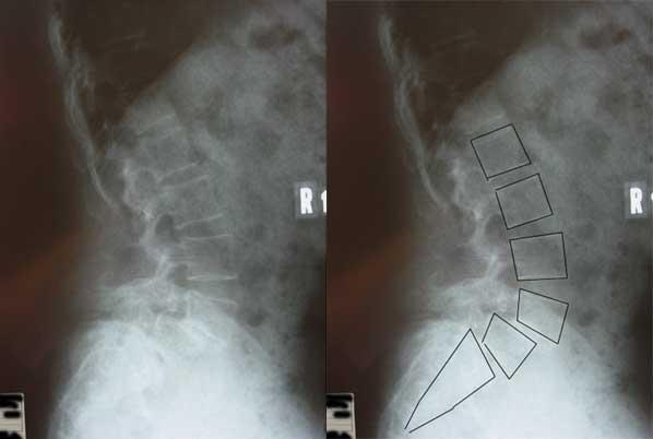 腰椎分離・すべり症2