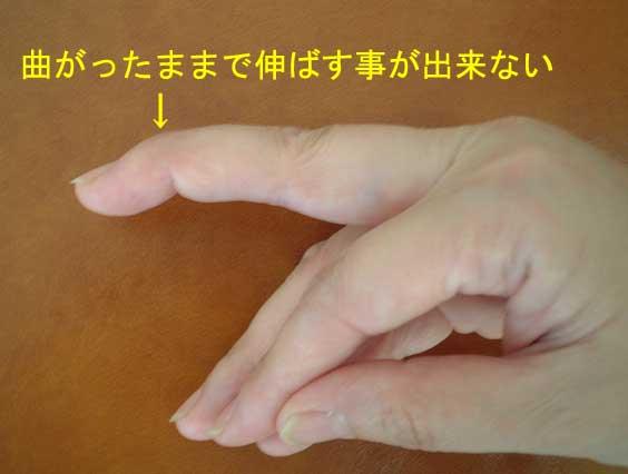 症状 突き指 突き指