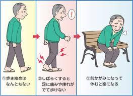 脊柱管狭窄症03