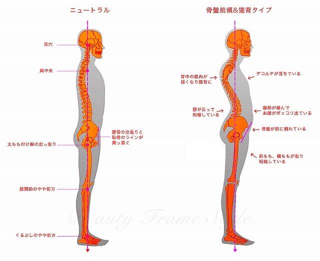bodytype_nekoze