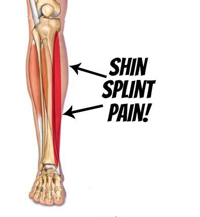 Shin-Splint-Pain